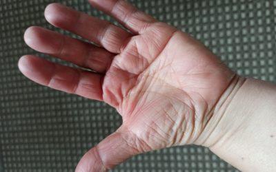 """""""Gib der Tante mal die Hand"""" – oder: Hand aufs Herz!?!"""